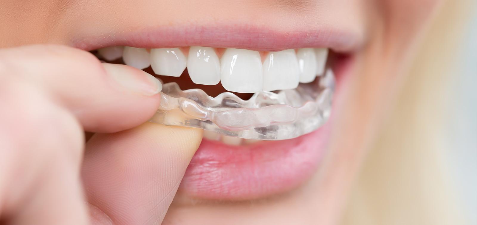 Bruxismus (Zähnepressen)